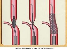 中国血管支架进口状况