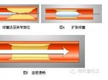 赢创尼龙12在医用球囊及导管的应用