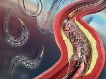 美国医学专家建议慎用药物涂层血管支架