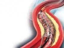 小小心脏血管支架要天价的原因是……