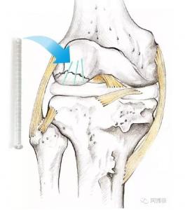 注塑膝盖骨钉之后,是增材制造个性化头骨吗?