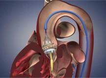 血管介入器械的选择