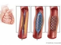 血管支架技术与产业研究进展分析