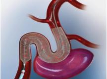 重磅,FDA又批准一款治疗动脉瘤的支架