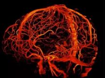 全球最牛MRI可看到大脑所有细节
